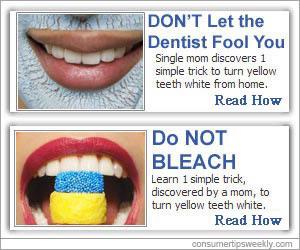 Vita tänder?
